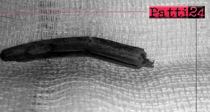 PATTI – Malasanità. Iniziò tutto da una ferita al piede in seguito ad un incidente domestico.