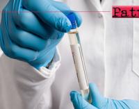 MESSINA – Asp. Scuola, ecco le modalità di esecuzione dei test sierologici per gli Insegnanti